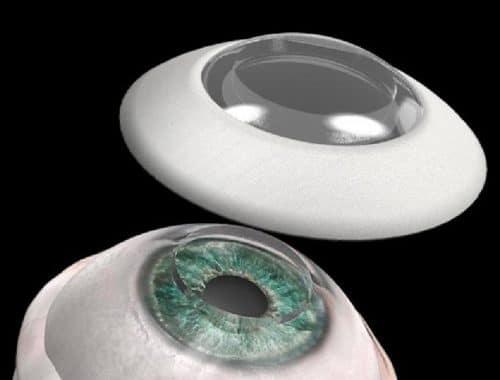 blinde man kan weer zien kunstmatig hoornvliesimplantaat CorNeat Vision KPro